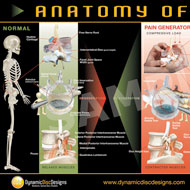 The Anatomy of Pain in Poster format available to buy from Dynamic Disc Design