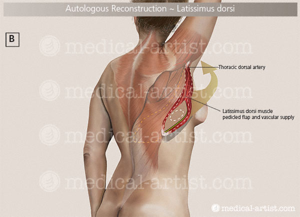 flap reconstruction latissimus breast