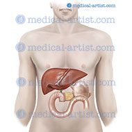 Medical artwork showing distal pancreatectomy splenectomy