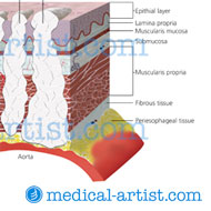 Esophageal tumor staging illustration