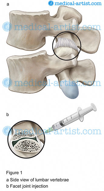 Orthopedic Surgery Ill...