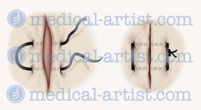 Dental Surgery Medical Illustrations Images Of Dental