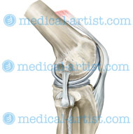 Knee lateral with ligaments