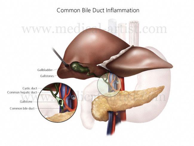 post gallbladder surgery symptoms cancer
