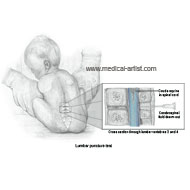 Lumbar puncture procedure in a 10 day old infant