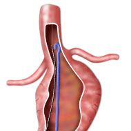 Medical illustration of preparatory stages of EVAR stent deployment in an aortic aneurysm