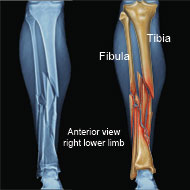 Comminuted leg fracture of tibia and fibula