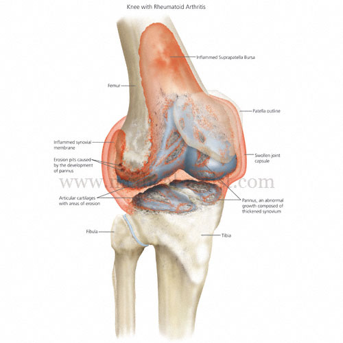 Reumatoid-Arthritis-Knee-labelled.jpg
