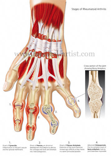 Rheumatoid-arthritis-hand.jpg
