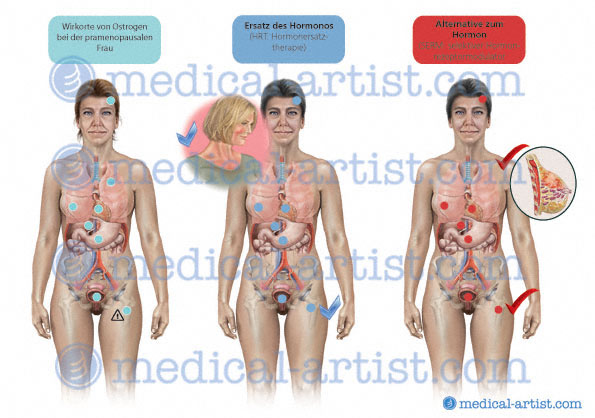 Medical Diagrams, Charts, Diagrams | Created By Certified Medical