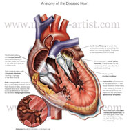 Diseases of the heart illustration
