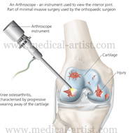 Arthroscope instrument
