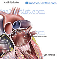 Atrial fibrillation (AF) causes an irregular heartbeat