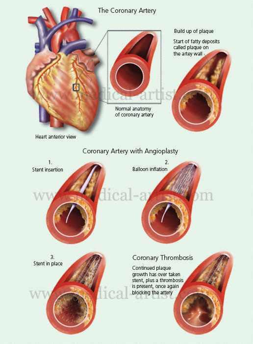Medical Illustrations Of Heart Disease Conditions Mitral Valve