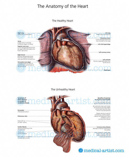 Blood Clot In Heart >> Medical illustrations of Heart Disease & Conditions | Mitral Valve Stenosis | Cardiomyopathy ...