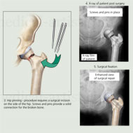 Left hip fracture with surgical fixation - hip pinning