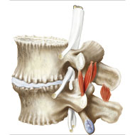 Lumbar vertebrae L4 and L5 and relating muscles with bone degenerationn