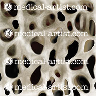 Bone with osteoporosis - stage 2