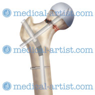 Surgery femur repair