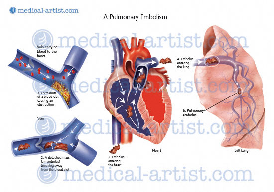 Medical illustrations of the lungs and respiratory system from pulmonary embolism diagram ccuart Image collections