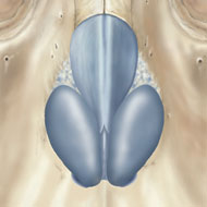 This illustration is demonstrating 'dome' shaped lateral nasal cartilage, and a subject for surgery