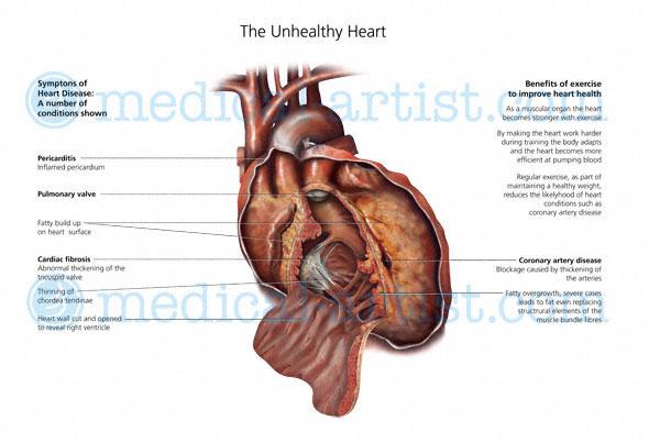 Anatomical Illustrations Of The Human Heart Heart Anatomy Heart