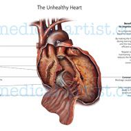 The anatomy of an unhealthy diseased heart
