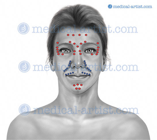 Botox Diagram Male Content Resource Of Wiring Diagram