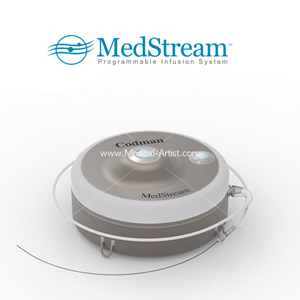 medical device visualisation created from CAD files