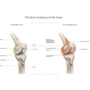 Bony anatomy of the knee