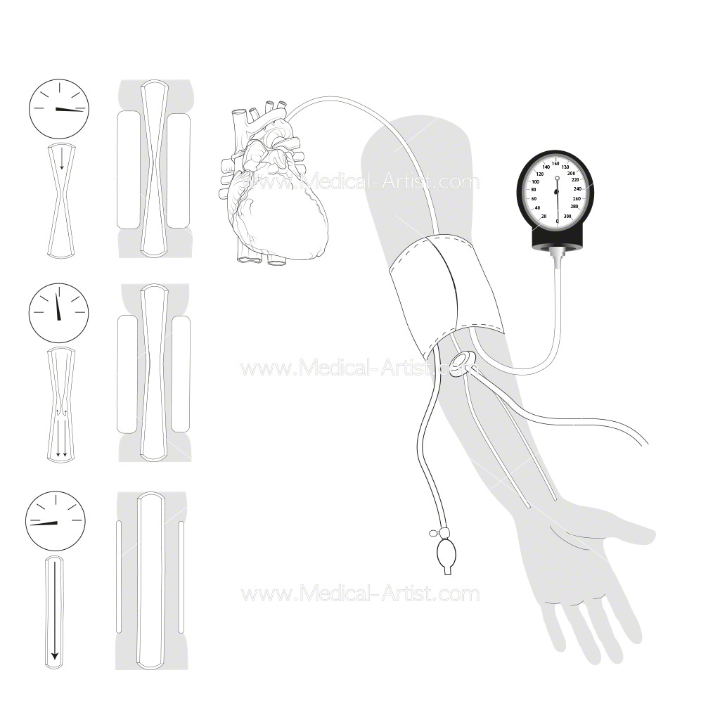 Line work drawing of blood pressure procedure