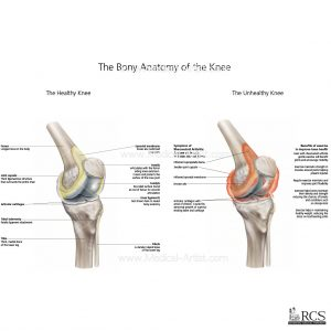 The bony anatomy of the knee