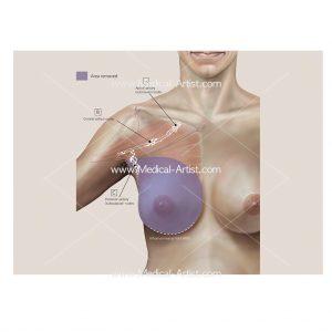 Modified radical mastectomy procedure