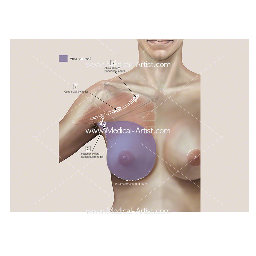 Modified radical mastectomy procedure