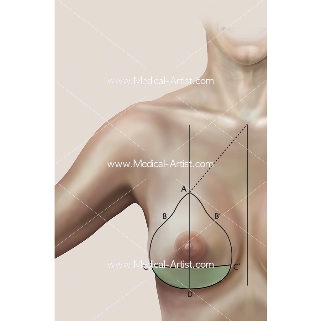 Breast surgery and a technique known as wise pattern approach