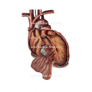 Medical illustration showing an unhealthy heart with various conditions