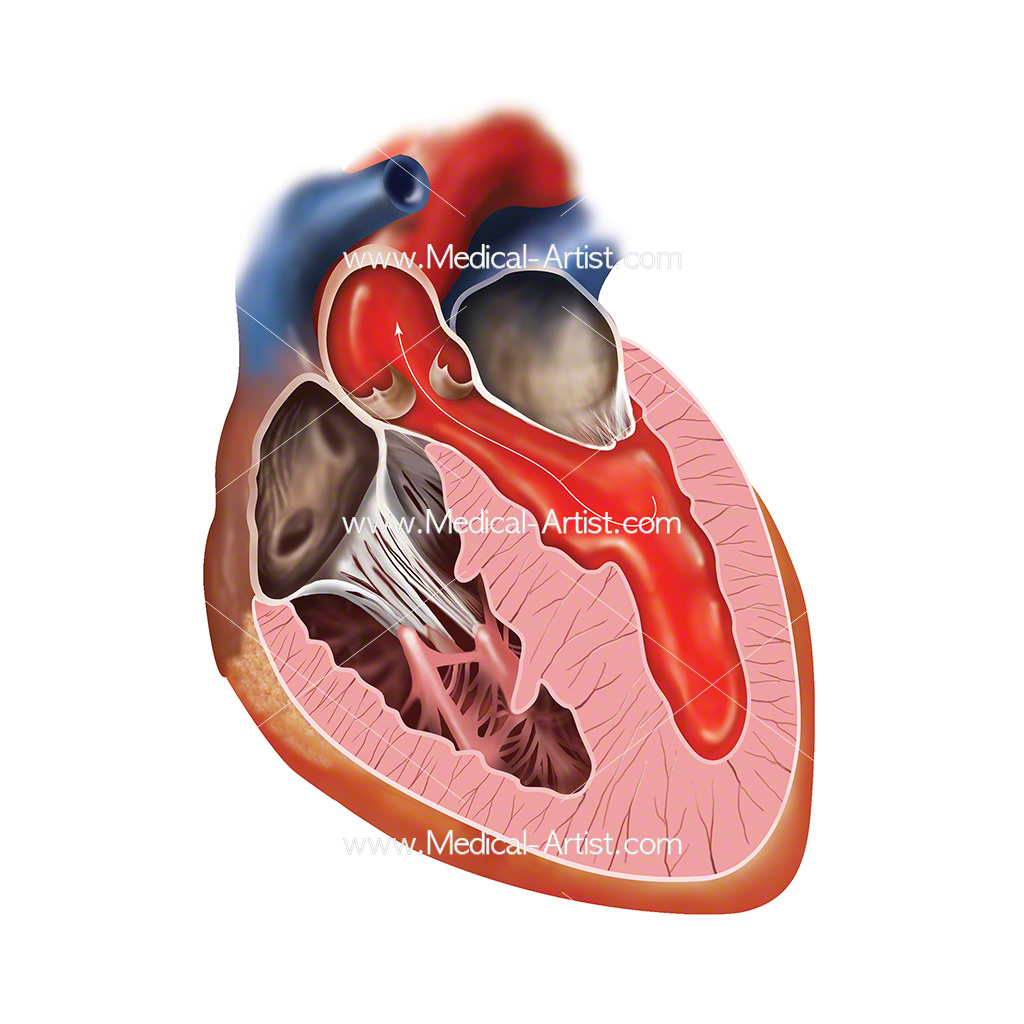 Illustration of blood flow through the right chambers of the heart