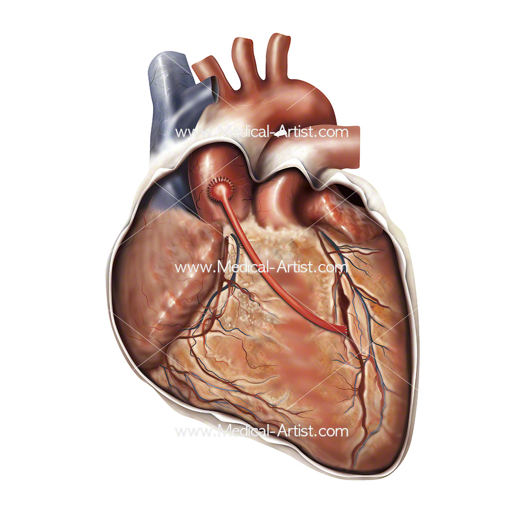 Illustration to show a coronary by-pass graft CABG