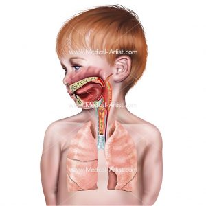 Croup in child's airway