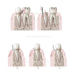 Series of five dental illustrations for dental surgery book