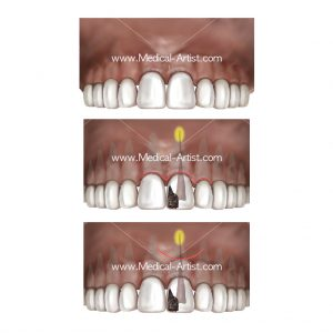Dental surgery on the oral region