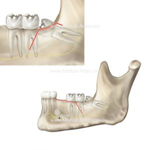 Dental surgery to remove partially erupted tooth