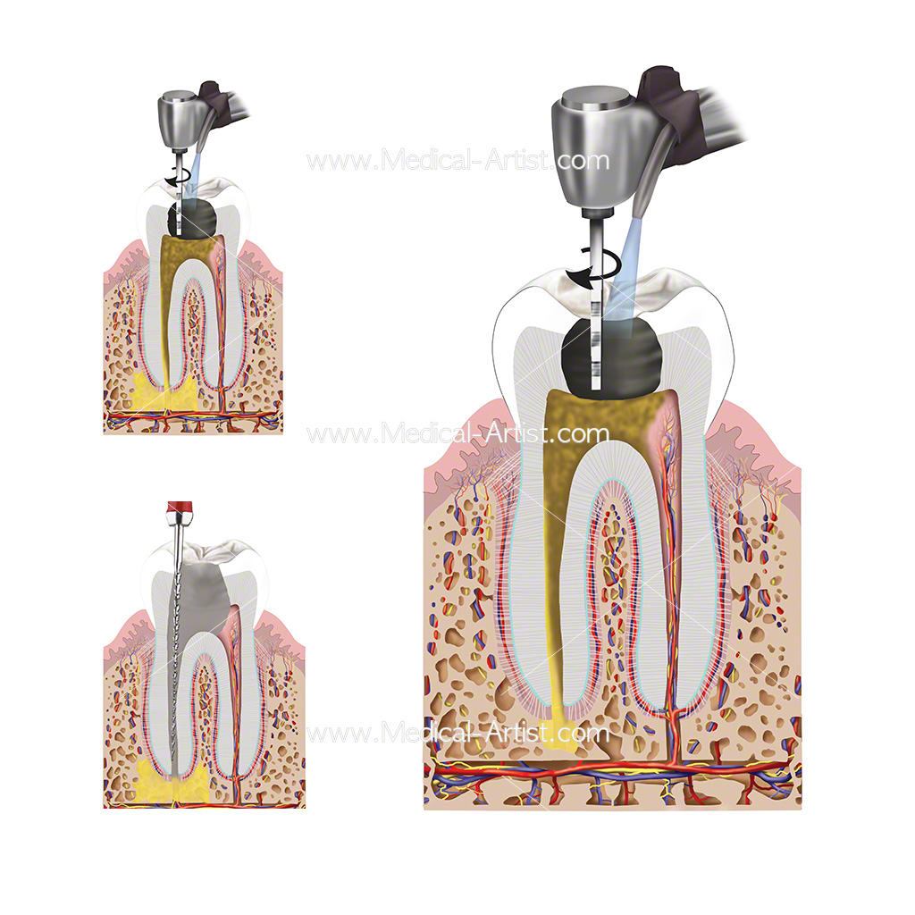 Three illustrations of endodonic filling procedure