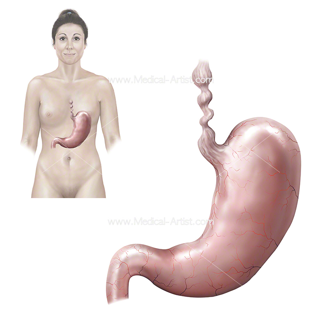 Esophagus and stomach spasm in a female