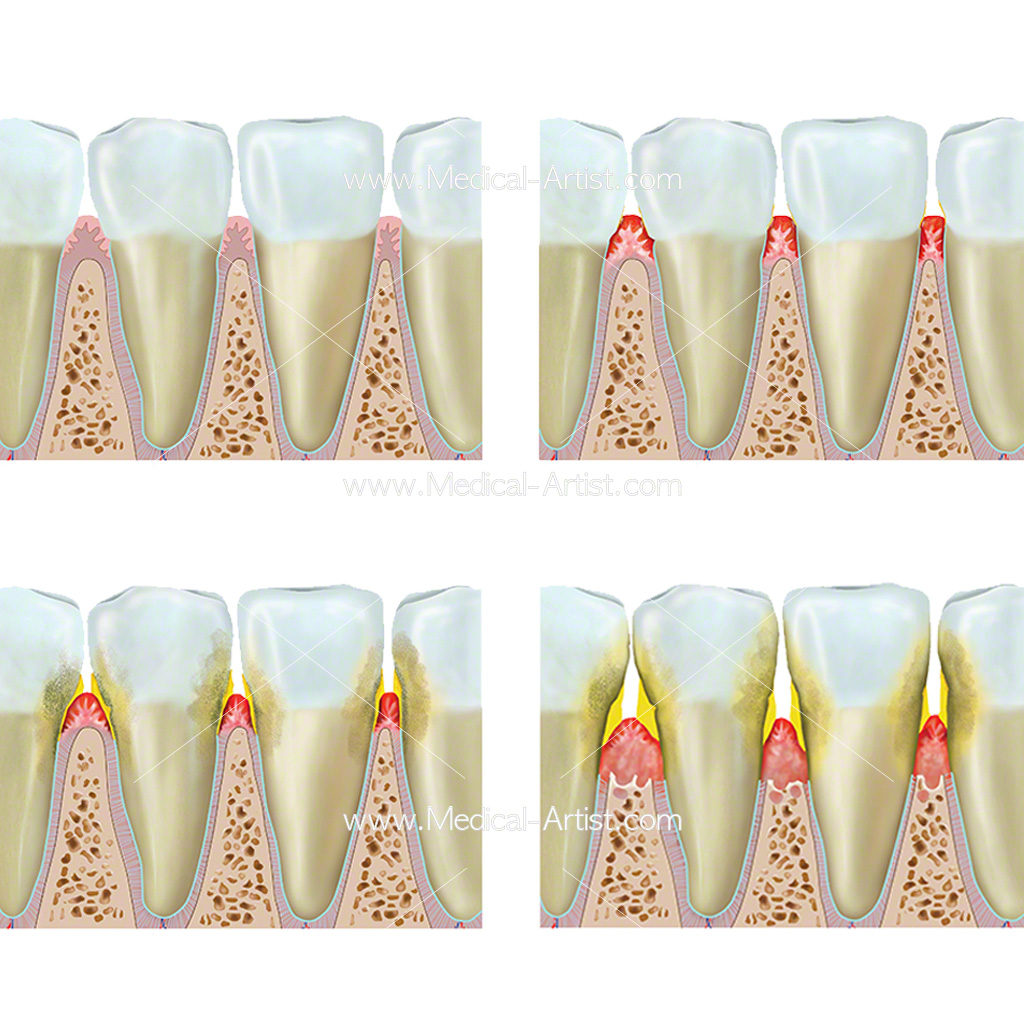 Four illustrations showing the stages of gum disease