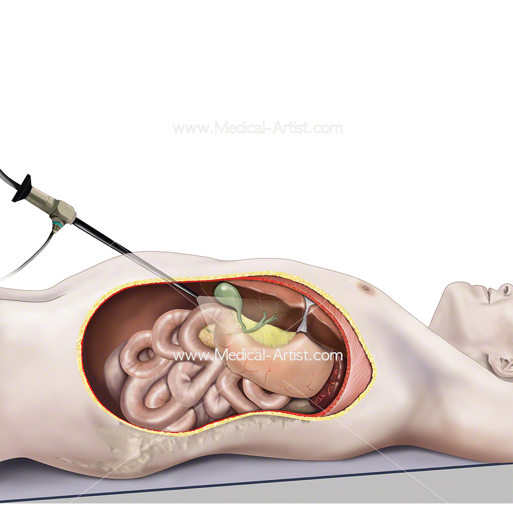 Laparoscopic surgery on the gallbladder