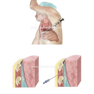 Lung biopsy procedure