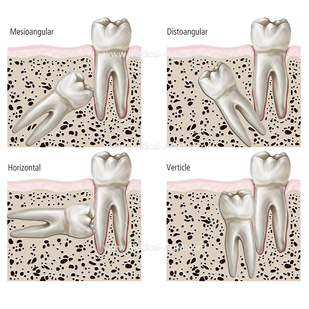 Irregular tooth growth placement illustration showing mesioangular, verticle, distoangular and horizontal anatomy