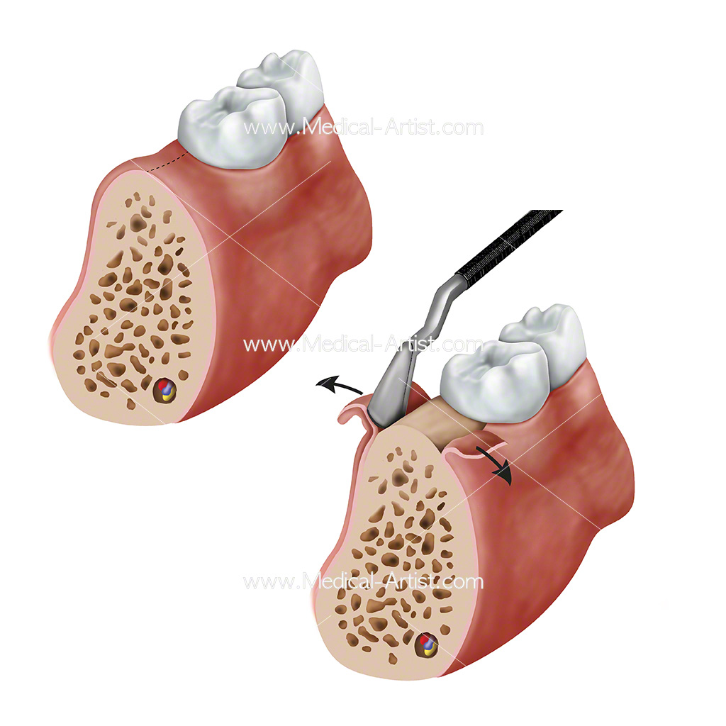 Illustration of a mid-crestal incision