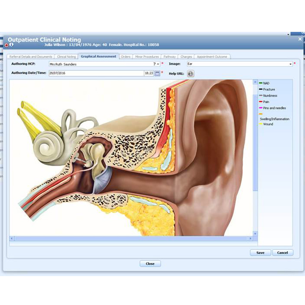 Example of medical illustration within a doctor to patient education scenario